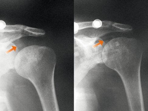 07261-NEURO-LUX-II-Shoulder-Joint-Functional-Brace-SporLastic-01.jpg
